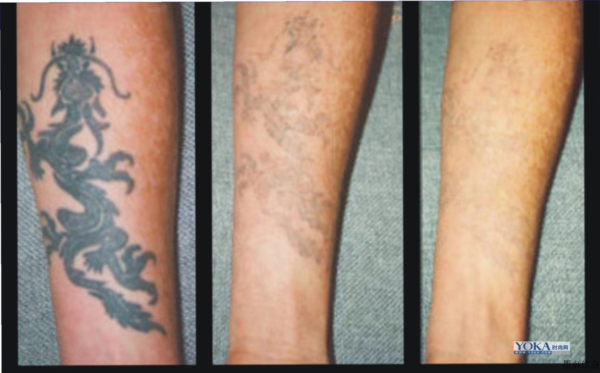 洗纹身对比图 - 瘾上刺青
